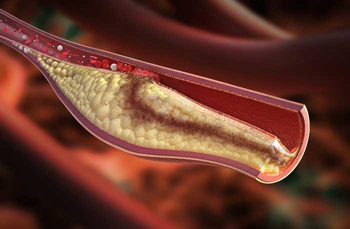 hình ảnh mạch máu bị mỡ máu cao
