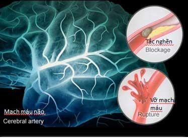 Triệu chứng tai biến mạch máu não