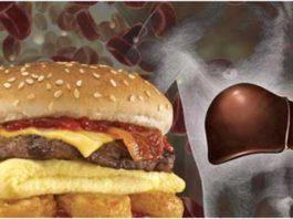 cholesterol tot hay xau 1