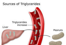 Triglycerides gay benh gan nhiem mo