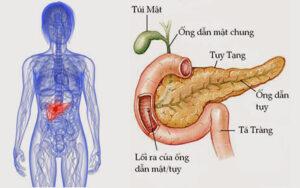 viêm tụy cũng là biến chứng khi máu nhiễm mỡ